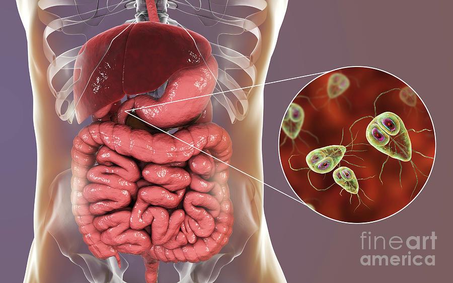 giardiasis stomach cramps hatékony és bevált gyógymód a férgek ellen