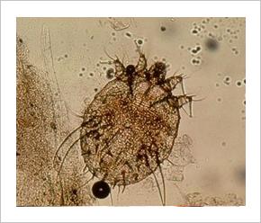 bél paraziták kerekes férgek készítmény a férgek enterobiasis