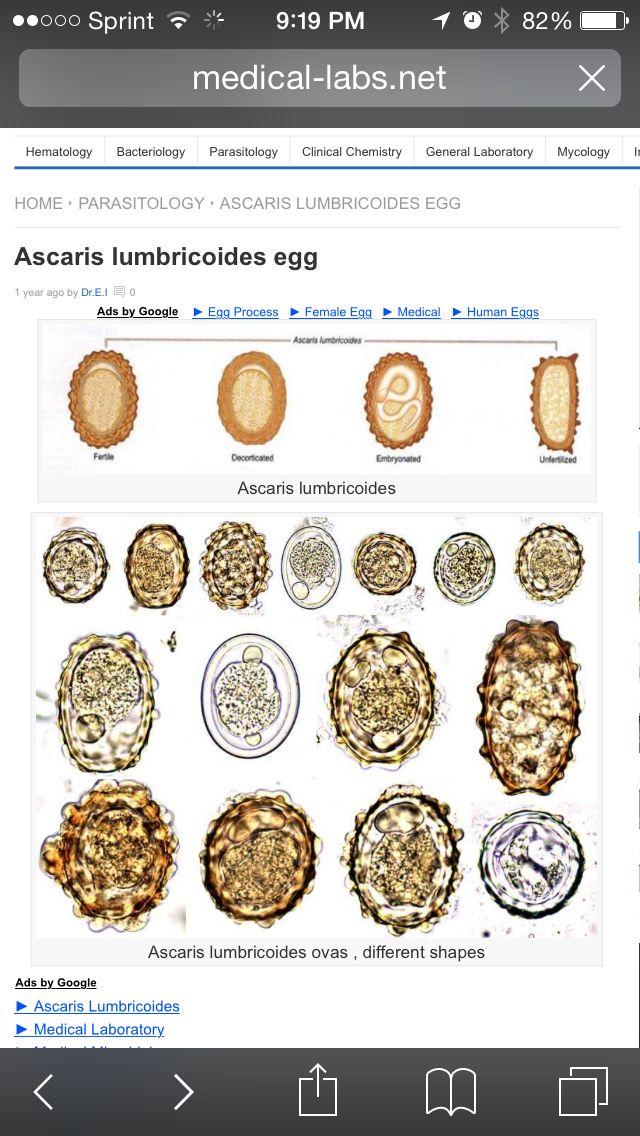 fascioliasis tojás