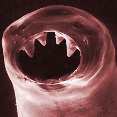 bélférgek paraziták fertőzés pinworm
