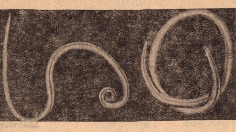 Hány pinworm féreg megy keresztül ,mossa meg a seggét mosószappannal, és felejtse el a férgeket