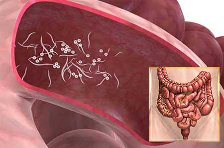 Pinworms felnőtteknél - az enterobiasis tünetei és kezelése, fertőzések megelőzése
