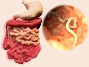 féregfertozes tünetei gyerekeknel milyen eszközökkel lehet megtisztítani a paraziták testét