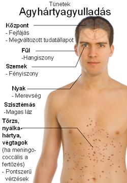 parazita széles streamer tünetei