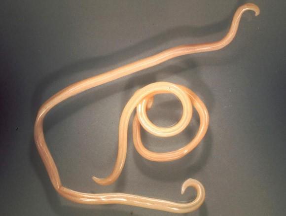 tinktúrák a parazitákhoz enterobiosis kozák