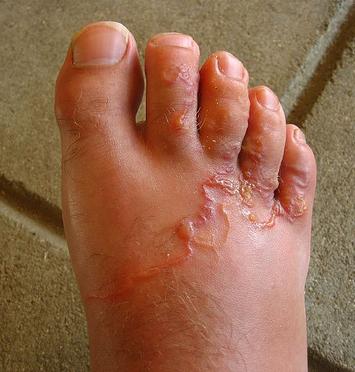 Szúnyogcsípéssel terjed a 17 centis bőr alatti féreg