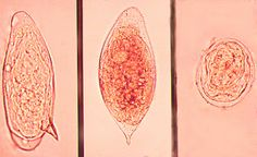 google schistosoma paraziták milyen gyógyszereket adhatunk a férgeknek férgekhez