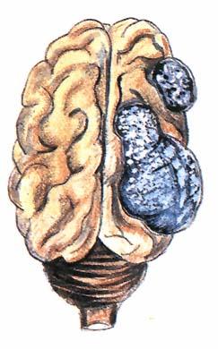roka galandfereg penicillus gomba parazita