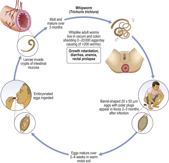 enterobiosis trichocephalosis