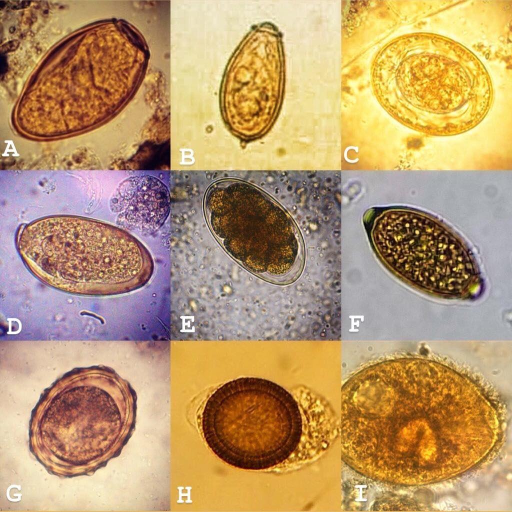 parazita tojások megtalálhatók az emberi vizeletben)