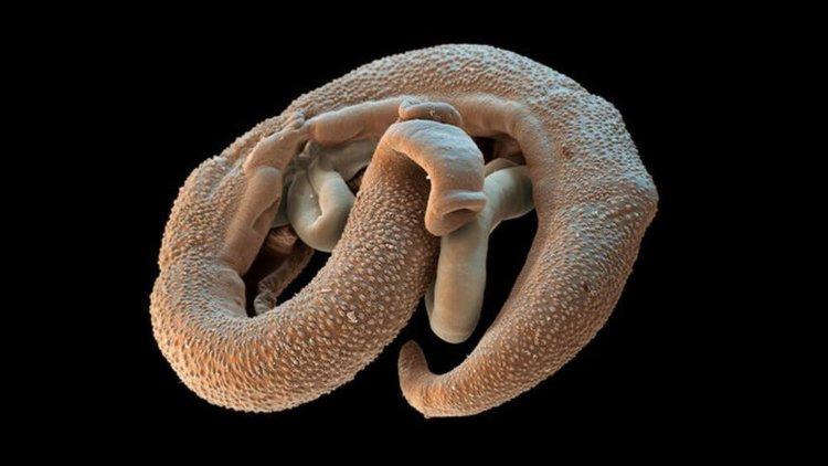 helmint parazita kezelés