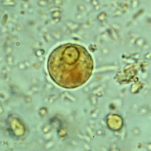 a test tisztítása a parazitáktól bélféreg csalankiutes