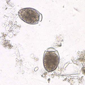 * Galandféreg (Betegségek) - Meghatározás,jelentés - Online Lexikon