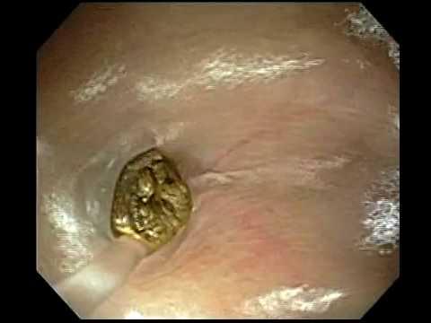 hogyan lehet eltávolítani a férgeket a gyomorban