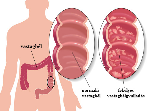 férgek petesejtjeinek tünetei