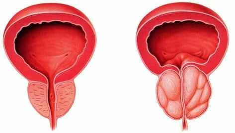 széles spektrumú féreg elleni gyógyszer férgek elofordulasa