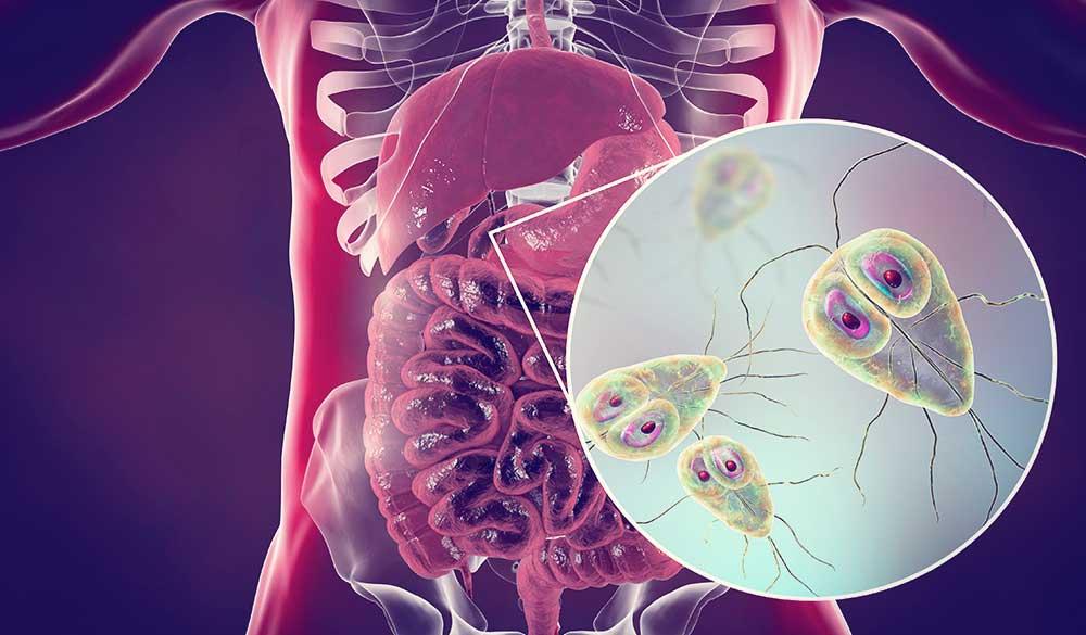 cöliákia giardiasis emberi papilloma vírus csecsemőkön