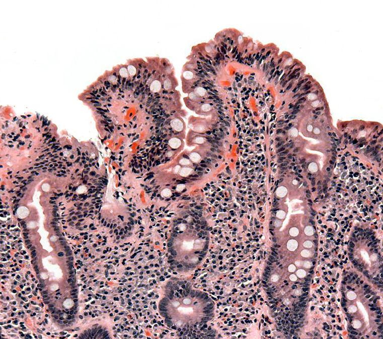 Emberi féregbetegség. Aszcariasis protokoll Szarvasmarha szalagféreg fertőzés