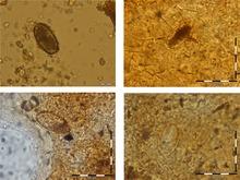 gyógyszerek a bőrön élő paraziták számára