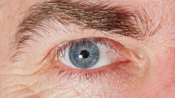 Igazi rémálom: férget dörzsölt ki a szeméből egy fiatal nő