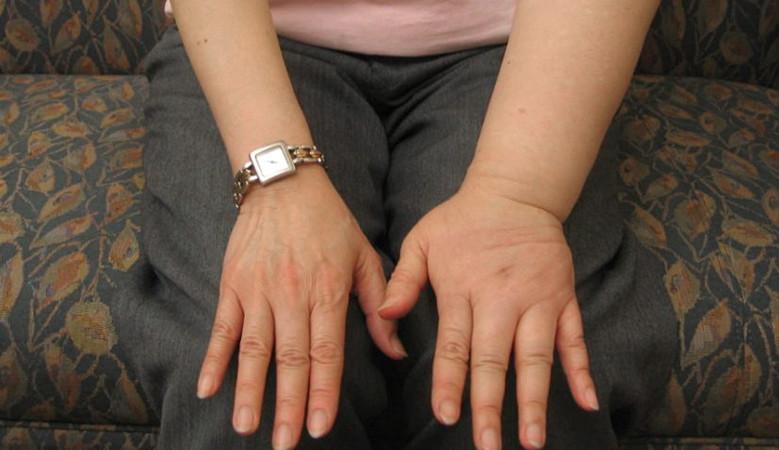 immunitás stimulátor antihelmintikus gyógyszer