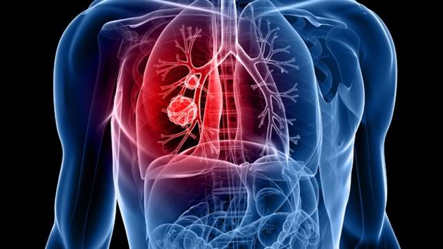 tüdő helminták