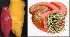 Parazita-bélféreg irtás természetes módszerekkel | Természetes-Egészséges-Bioexpress Megoldások