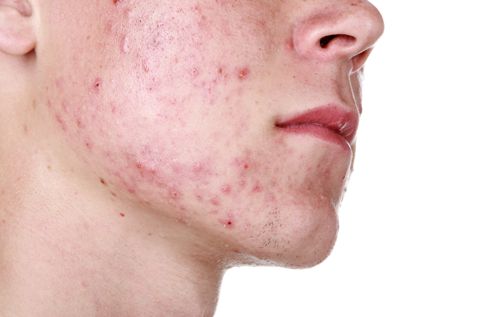 12 biztos jele annak, hogy parazita van a testedben | bacsbokodi-peca.hu