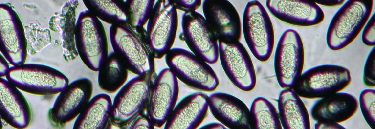 férgek fajta név pinworm worms gyógyszer