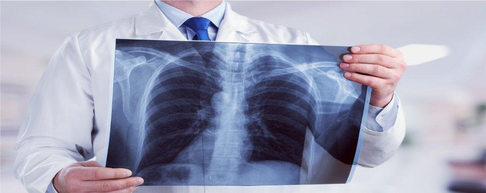 Kerekféreg a tüdőben tünetek felnőtteknél, A bronchiális asztma diagnosztizálása - Antritis March