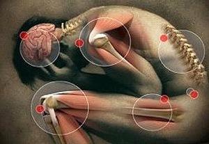 helmint rossz levegőt gyógyszer férgek és férfiak számára