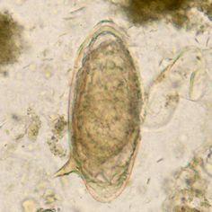 bélféreg teszt parazita tisztító receptek
