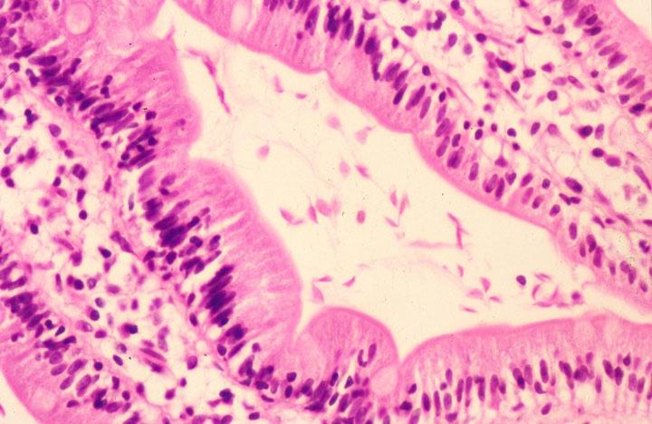 giardia duodenum pathology
