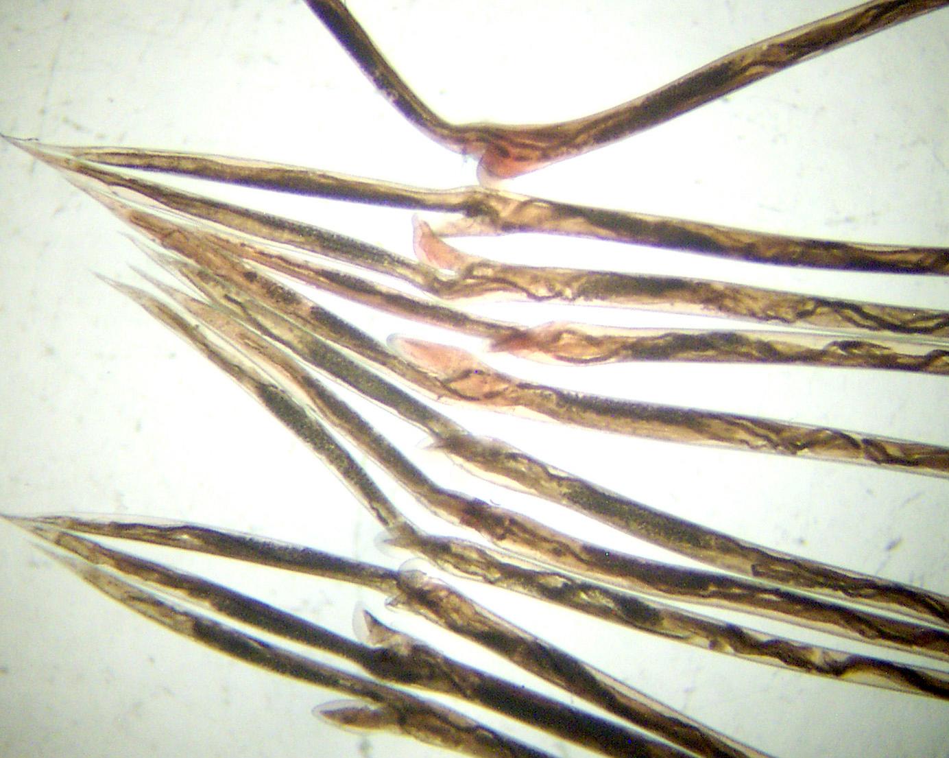 helminthosporiose orge