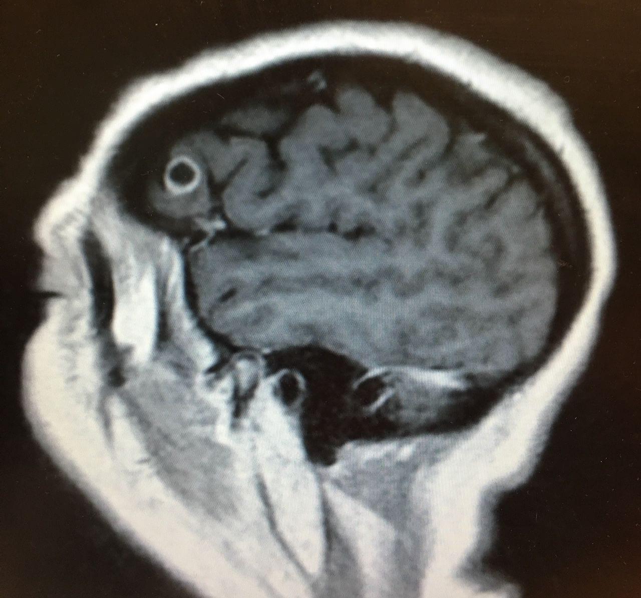 kerek féreg az agyban a rossz lehelet okainak diagnosztizálása