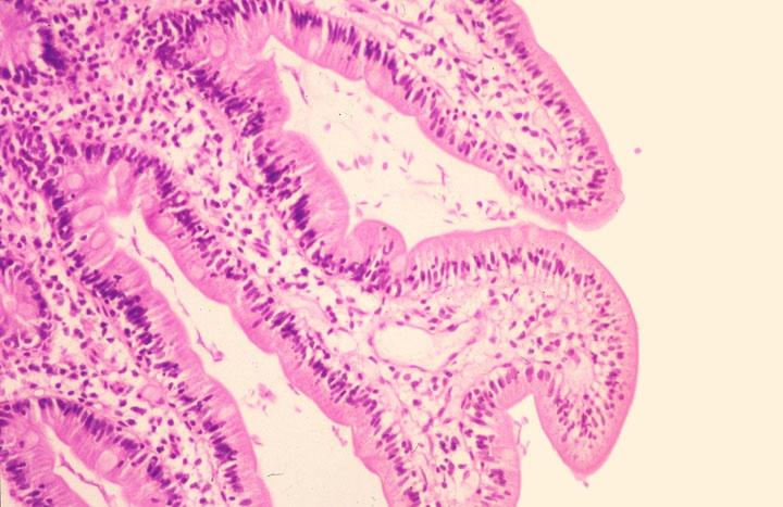 enterobiosis tabletta schob