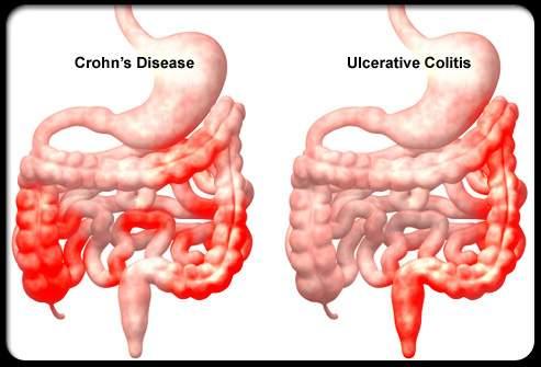 helmint kezelés Crohn- betegség