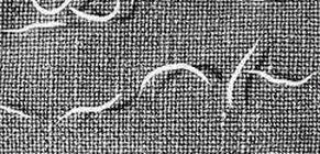 Pinworms kezelése: tünetek és gyógyszerek - Szövődmények March