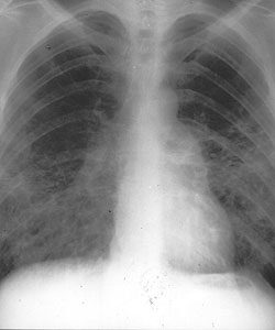 az emberi tüdőben kerekféreg