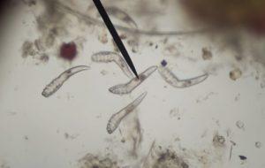 3D Ultrahang - paraziták   nlc