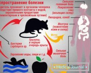 A viszketés kezelése - Tünetek