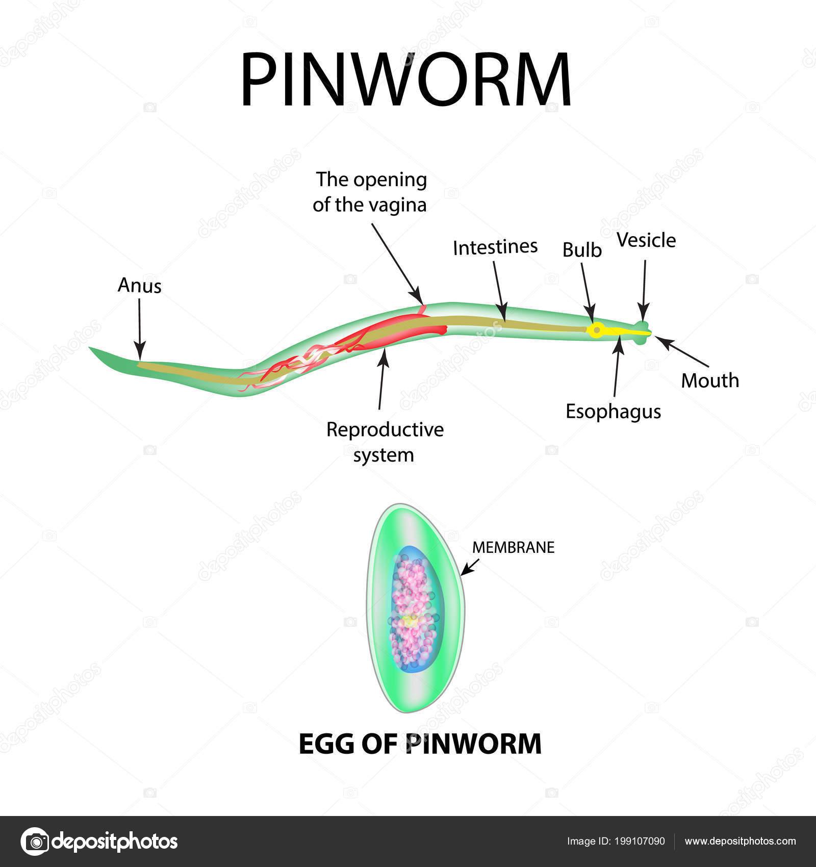 Pinworms felnőtteknél - tünetek és kezelés