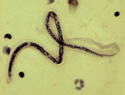 helmint gyógyszer gyermekek számára a protozoánok ellenálló formája