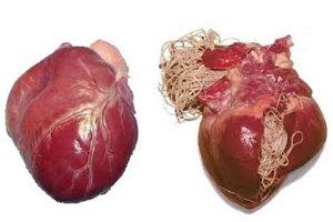 Szívférgesség: az élősködő fonálféreg számára az ember nem a megfelelő gazda