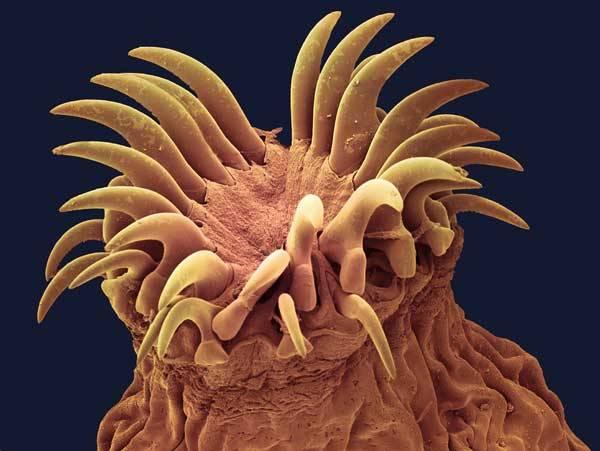 toxoplasmosis inkubációs periódus giardia u ludzi