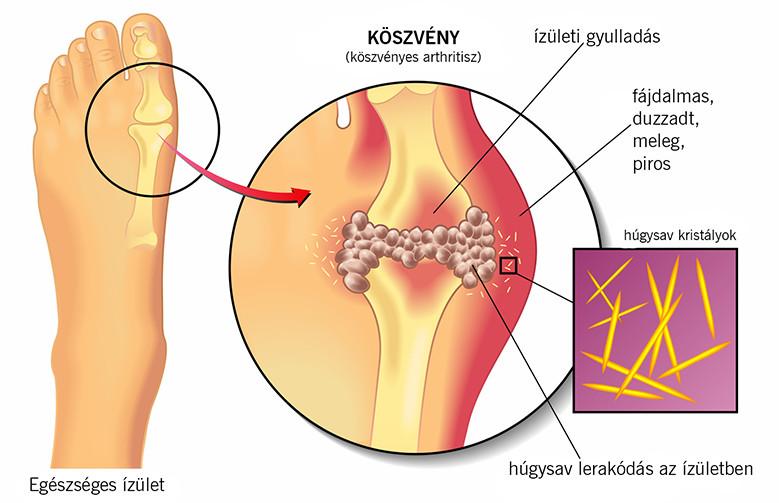 féreg olaj ízületi fájdalmak kezelésére)