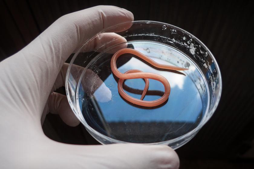 Paraziták a szervezetünkben: mikor gyanakodjunk?