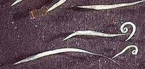 pinworms a vastagbélben