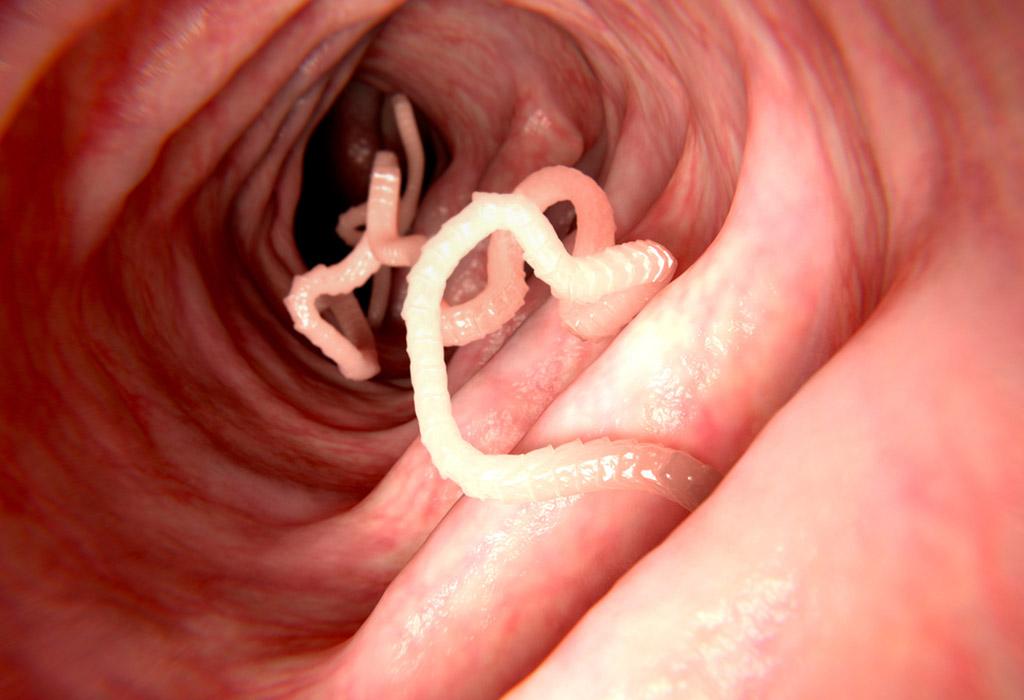 paraziták a tüdőben, hogyan kell kezelni
