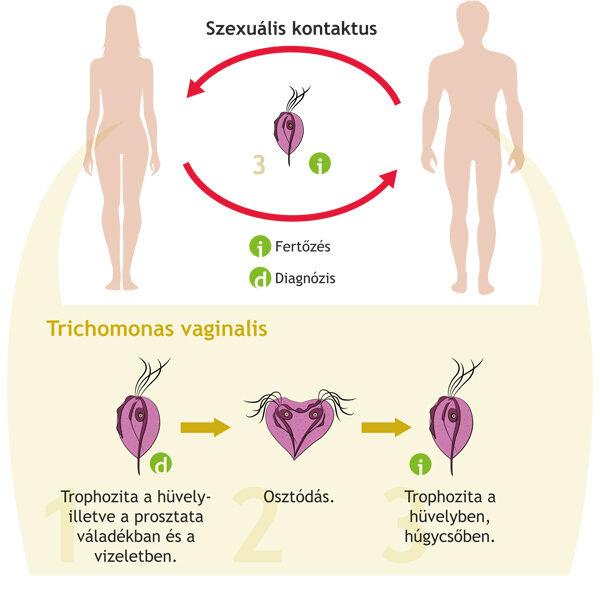 giardiasis fertőzés forrása
